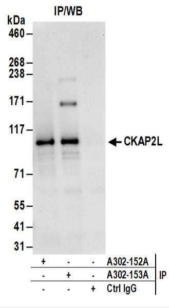 Anti-CKAP2L