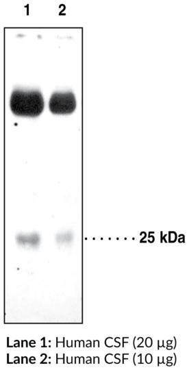 Anti-Prostaglandin D Synthase (lipocalin-type)