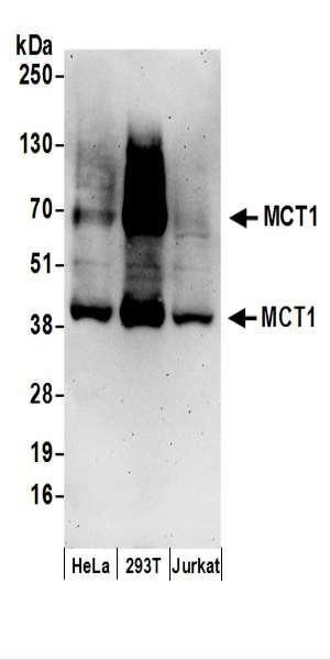 Anti-MCT1