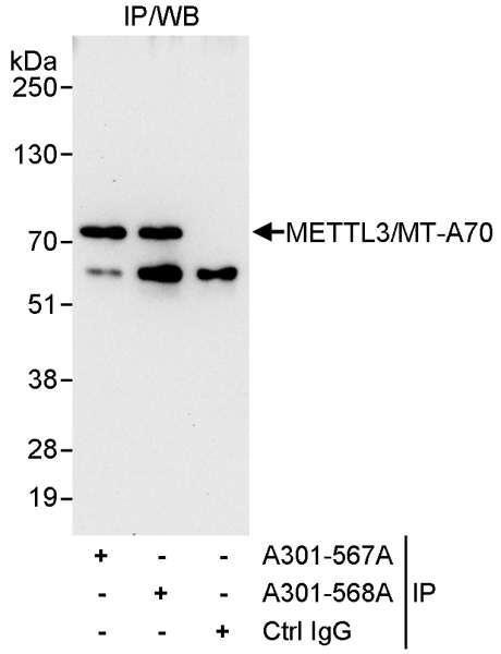 Anti-METTL3/MT-A70