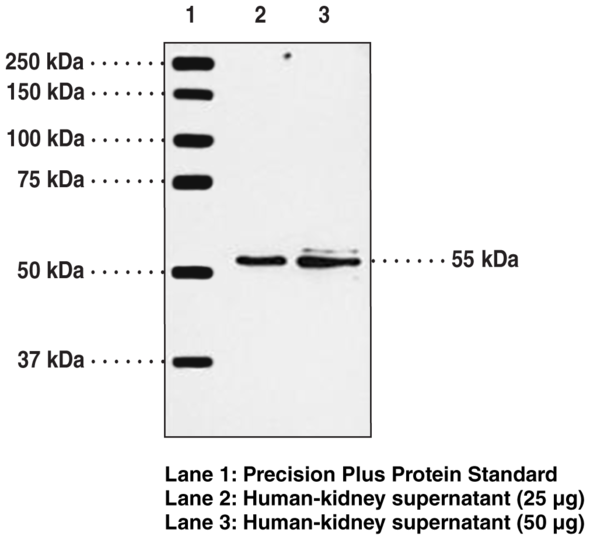 Anti-BLT1 Receptor Antiserum