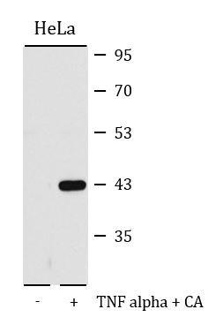 Anti-phospho-p38&nbsp,MAPK (Thr180/Tyr182)