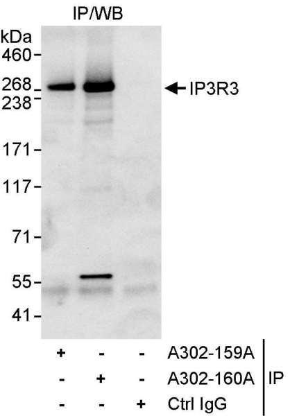 Anti-IP3R3