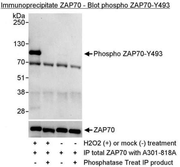 Anti-phospho-ZAP70 (Tyr493)