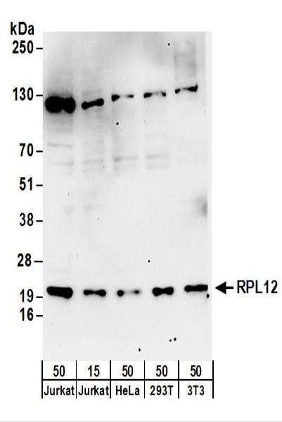 Anti-RPL12