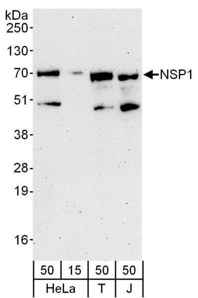 Anti-NSP1