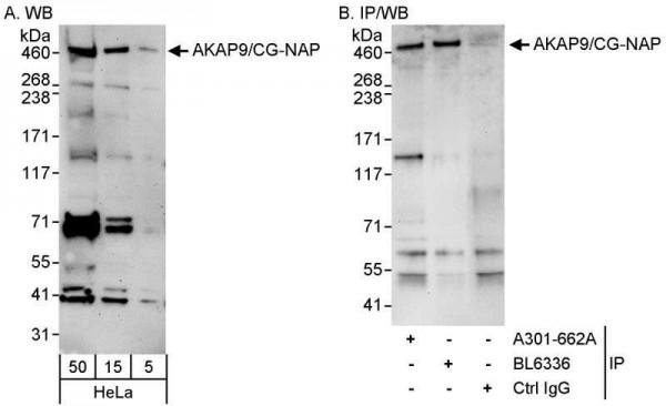 Anti-AKAP9/CG-NAP