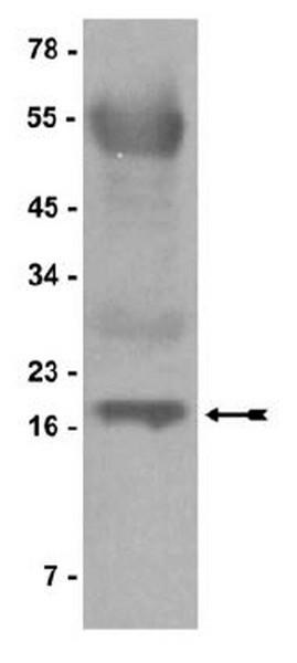 DNA, Salmon Testes, Protein G (Agarose)