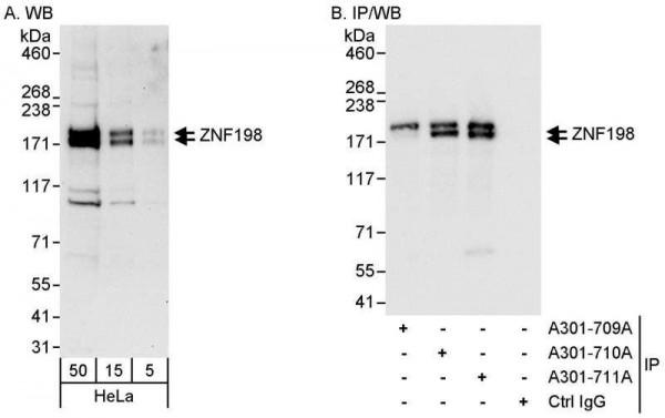 Anti-ZNF198