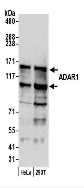 Anti-ADAR1