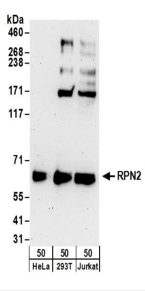 Anti-RPN2