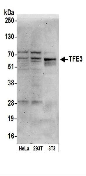 Anti-TFE3