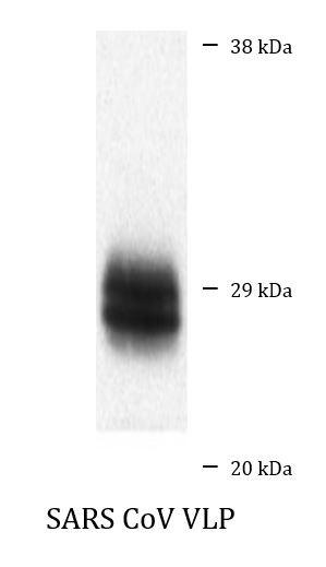 Anti-SARS-CoV M protein