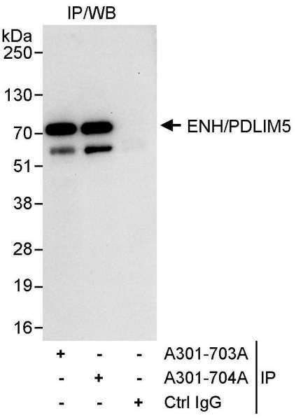 Anti-ENH/PDLIM5