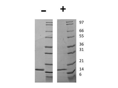 Granulocyte Colony Stimulating Factor