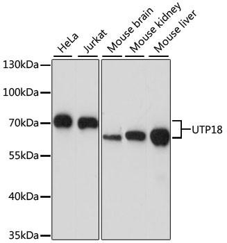 Anti-UTP18
