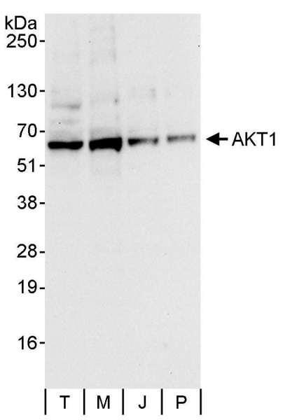Anti-AKT1