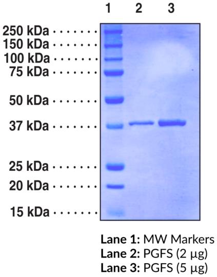 Prostaglandin F Synthase (human recombinant)