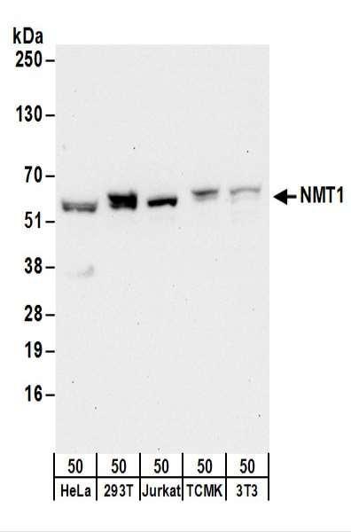 Anti-NMT1