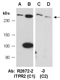 Anti-ITPR2 (C2)