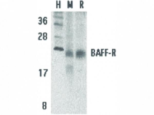 Anti-BAFF Receptor