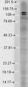 Anti-SAPAP (pan), clone S127-31