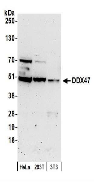 Anti-DDX47