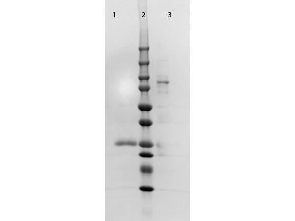 Anti-Human IgM (Fc5µ) [Goat] F(ab')2 fragment