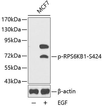 Anti-phospho-RPS6KB1-S424