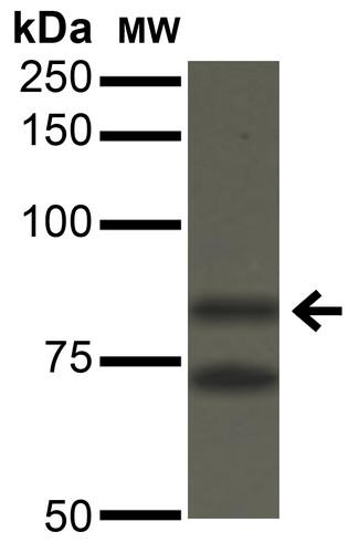 Anti-Ataxin 1, clone S76-8