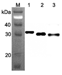 Anti-Ribosomal Protein S3 (human), clone RP159-1