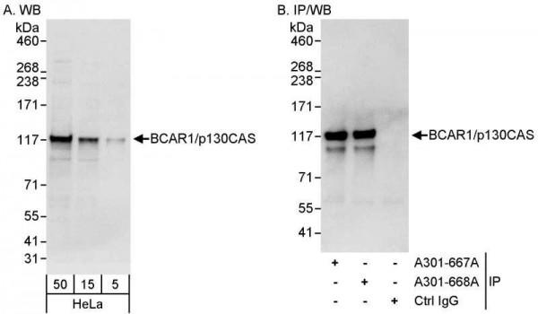 Anti-BCAR1/p130CAS