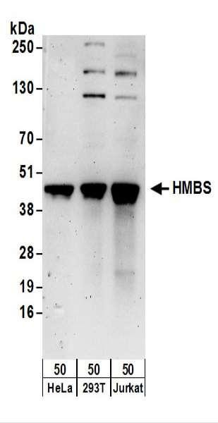 Anti-HMBS