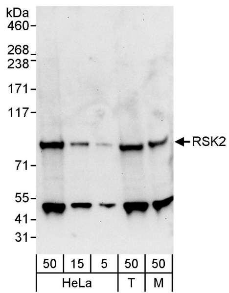 Anti-RSK2