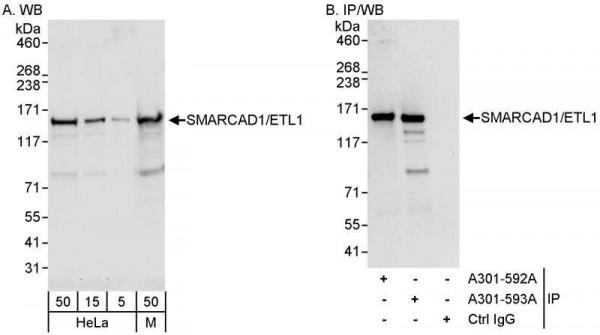 Anti-SMARCAD1/ETL1