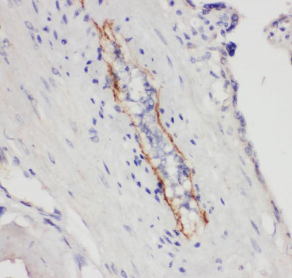 Anti-CD62P