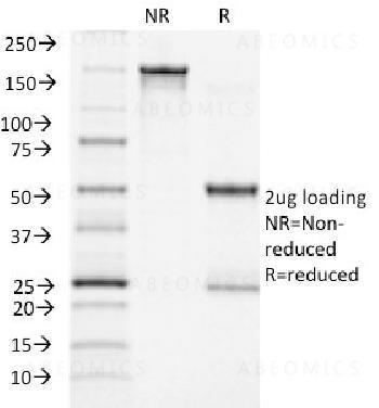 Anti-ACTH (Adrenocorticotrophic Hormone) (C-Terminus) Monoclonal Antibody (Clone: CLIP/1418)