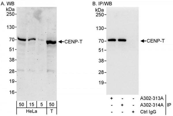 Anti-CENP-T
