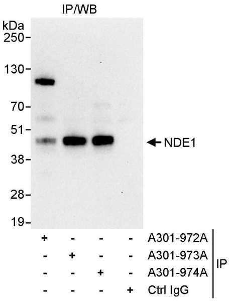 Anti-NDE1