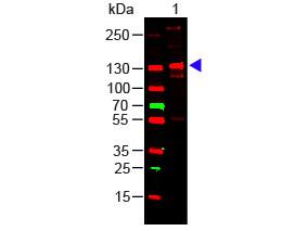 Human Collagen Type III