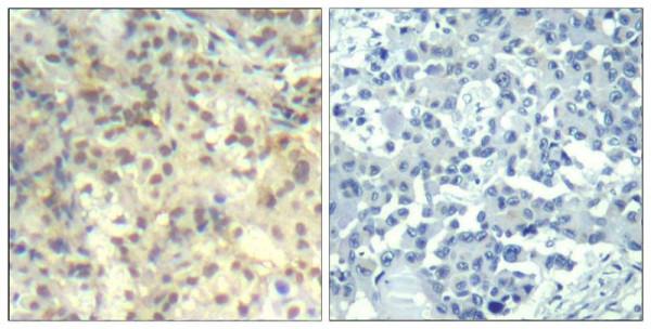 Anti-phospho-Cofilin 1 (Tyr139)