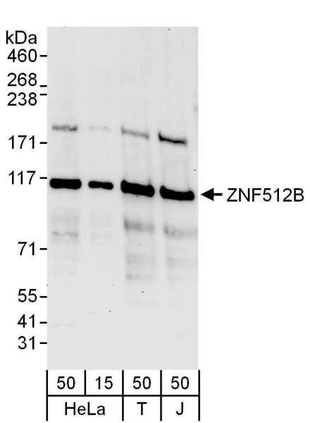 Anti-ZNF512B