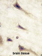 Anti-EphA5, clone 46CT61.6.4