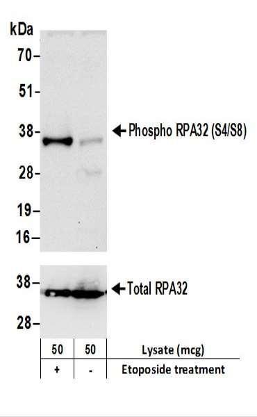 Anti-phospho-RPA32 (Ser4/Ser8)