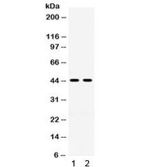 Anti-HSD11B2