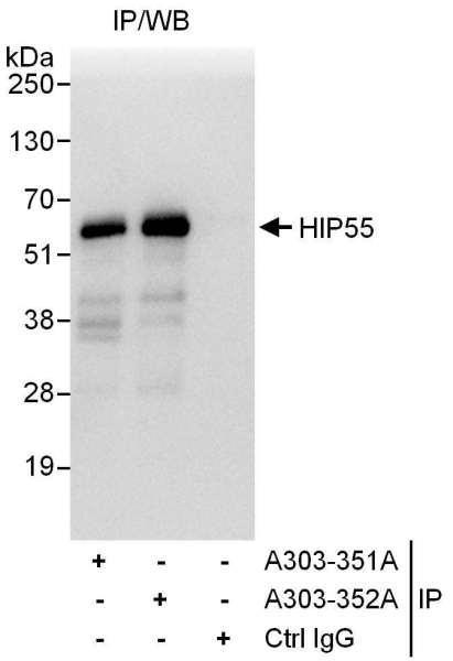 Anti-HIP55