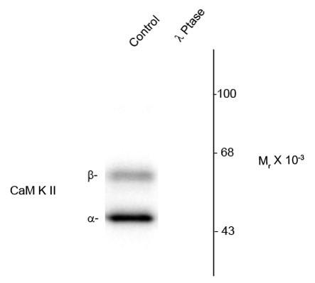 Anti-phospho-CaMKII (Thr286)