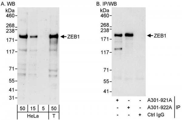 Anti-ZEB1