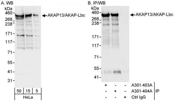Anti-AKAP13/AKAP-Lbc