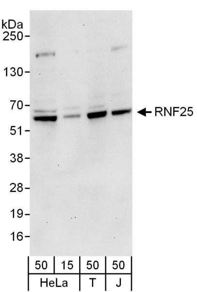 Anti-RNF25
